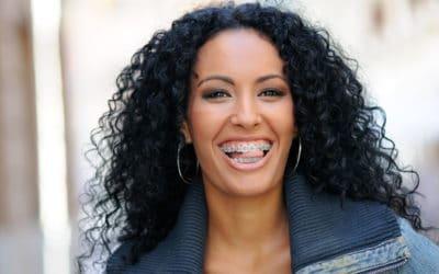 Frau mit schwarzen haaren lacht mit einer festen Zahnspange für Erwachsene