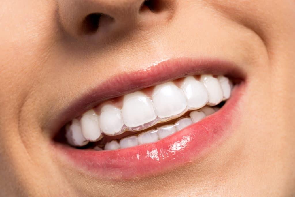 frau laechelt mit unsichtbarere zahnspange im mund