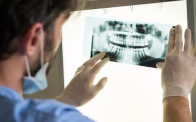 Arzt betrachtet das Röntgenbildes eines Patienten mit Tiefbiss