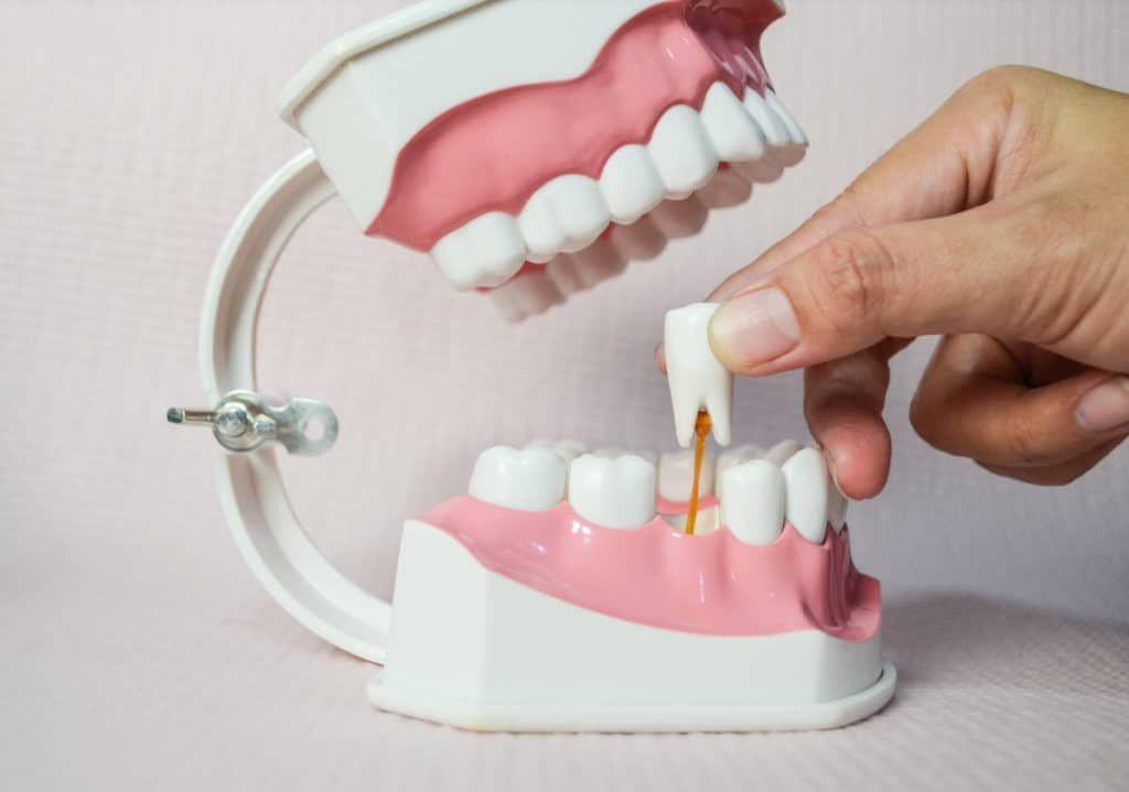 Zahn wird mit dem Finger aus einem Zahnmodell gezogen