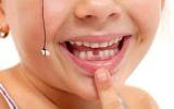Ein Kind zeigt mit dem Finger auf den Zahnlücke des verlorenen Milchzahns