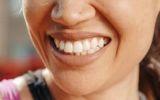 Eine Sportlerin zeigt ihre Zähne. Zu sehen ist ein zu weit vorstehender Oberkiefer